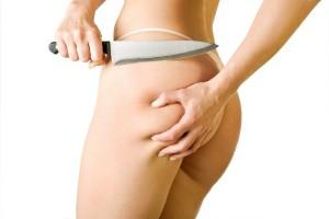 Celulita:Cauze, tratament si preventie