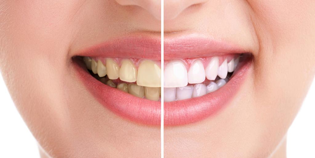 Albirea dintilor cu sau fara riscuri