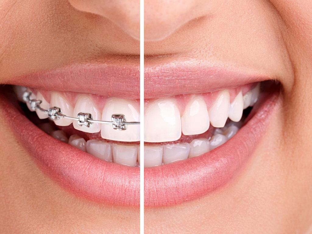 De cate tipuri sunt aparatele dentare?