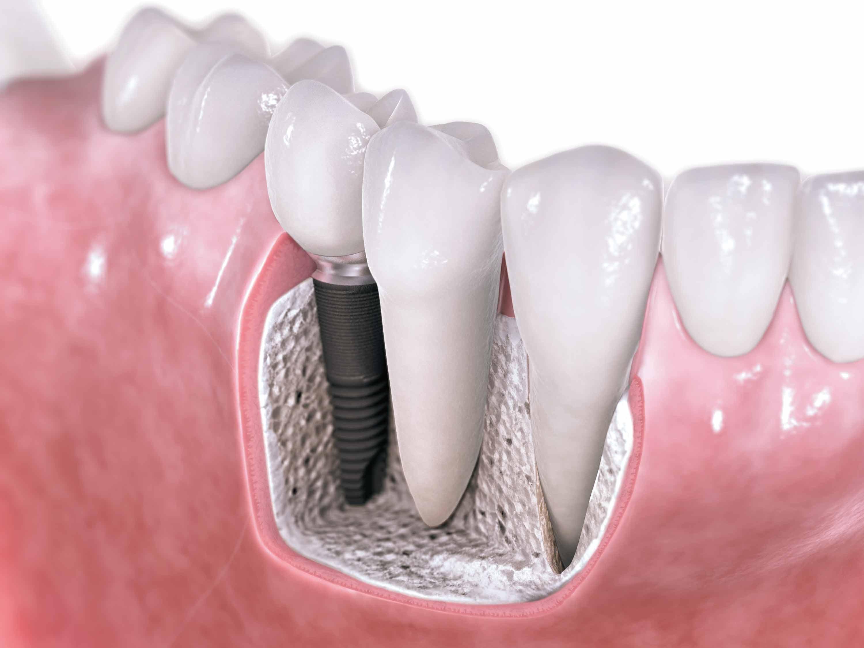 Scopul implantului