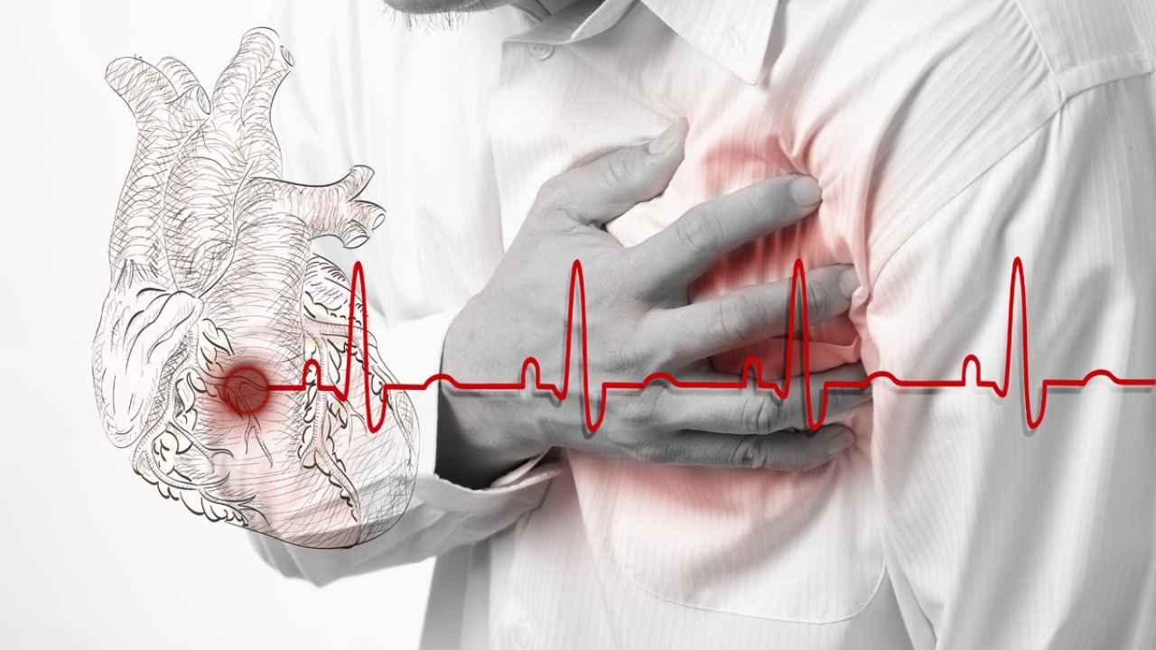 Atacul de cord - una din cauzele majore ale deceselor